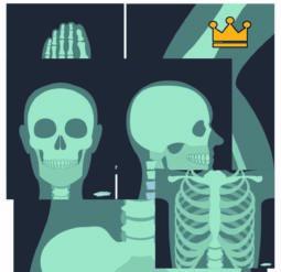 Играем в доктора - снимки рентгена